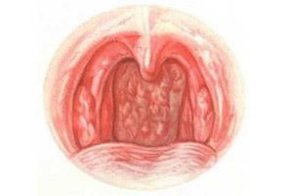 Атрофический фарингит фото горла