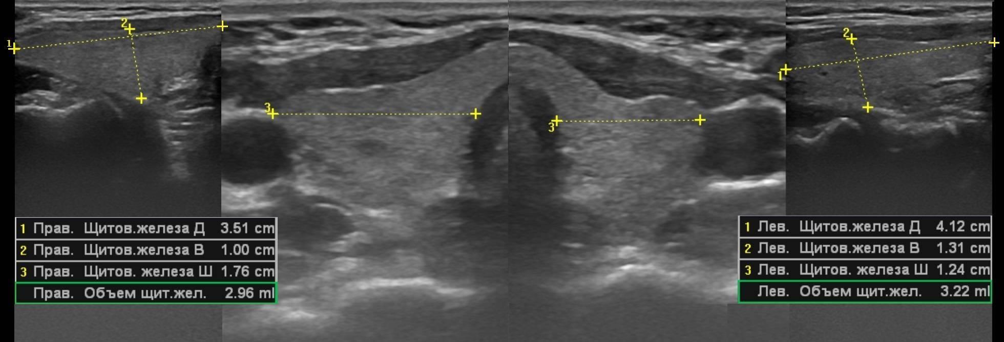 Размеры щитовидной железы в норме у женщин – таблица, нормальный объем