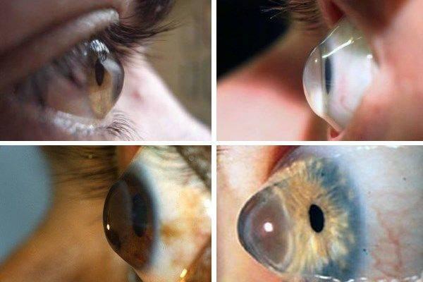 что делать если линза потерялась в глазу