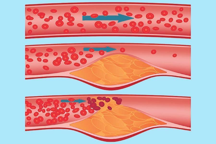 Атеросклероз сонных артерий и ишемический инсульт