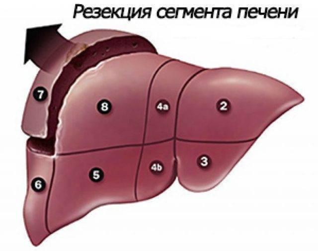 Гемангиома печени. причины и лечение гемангиомы печени.