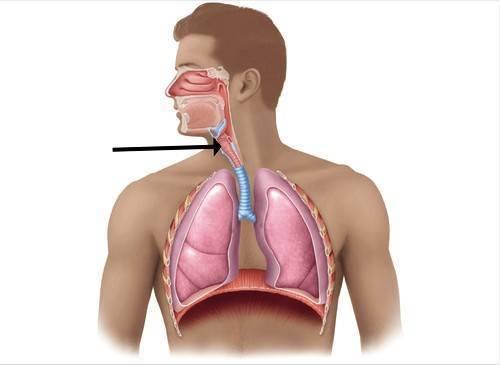 Туберкулез гортани: главные симптомы и лечение