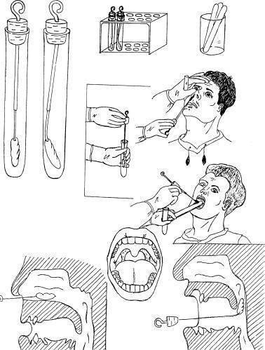 Мазок из зева, носа, горла у ребенка: норма, расшифровка, подготовка