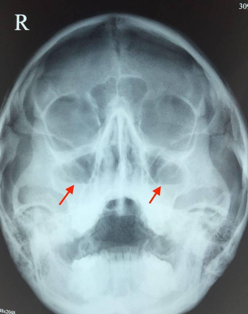 придаточные пазухи носа пневматизированы