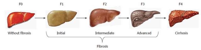 цирроз печени 3 степени сколько живут