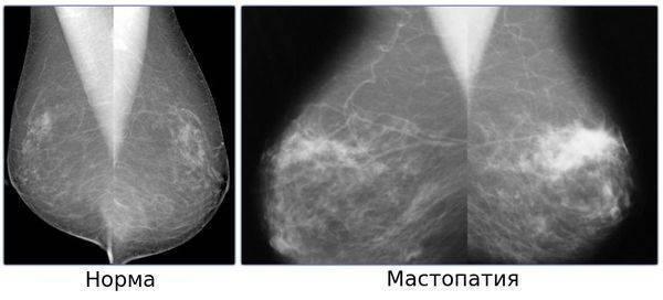 Уплотнение в молочной железе у женщин: причины и лечение