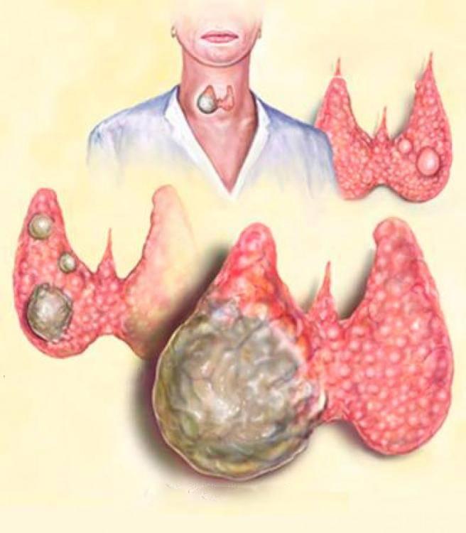 Что нужно знать о раке щитовидки