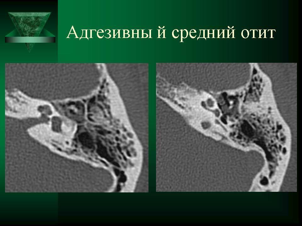Адгезивный средний отит  - симптомы болезни, профилактика и лечение адгезивного среднего отита, причины заболевания и его диагностика на eurolab