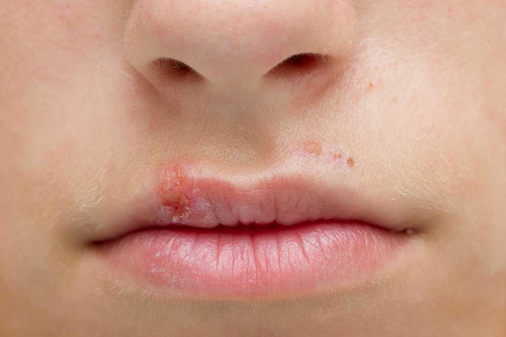 герпес на губах у ребенка лечение