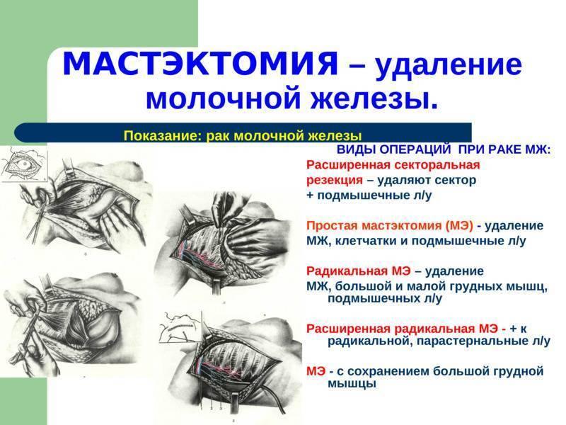 Резекция молочной железы: виды, показания, проведение, восстановление после