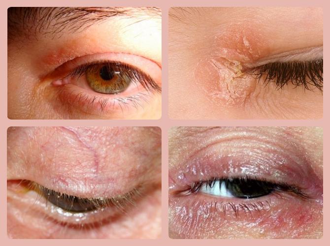 псориаз глаза