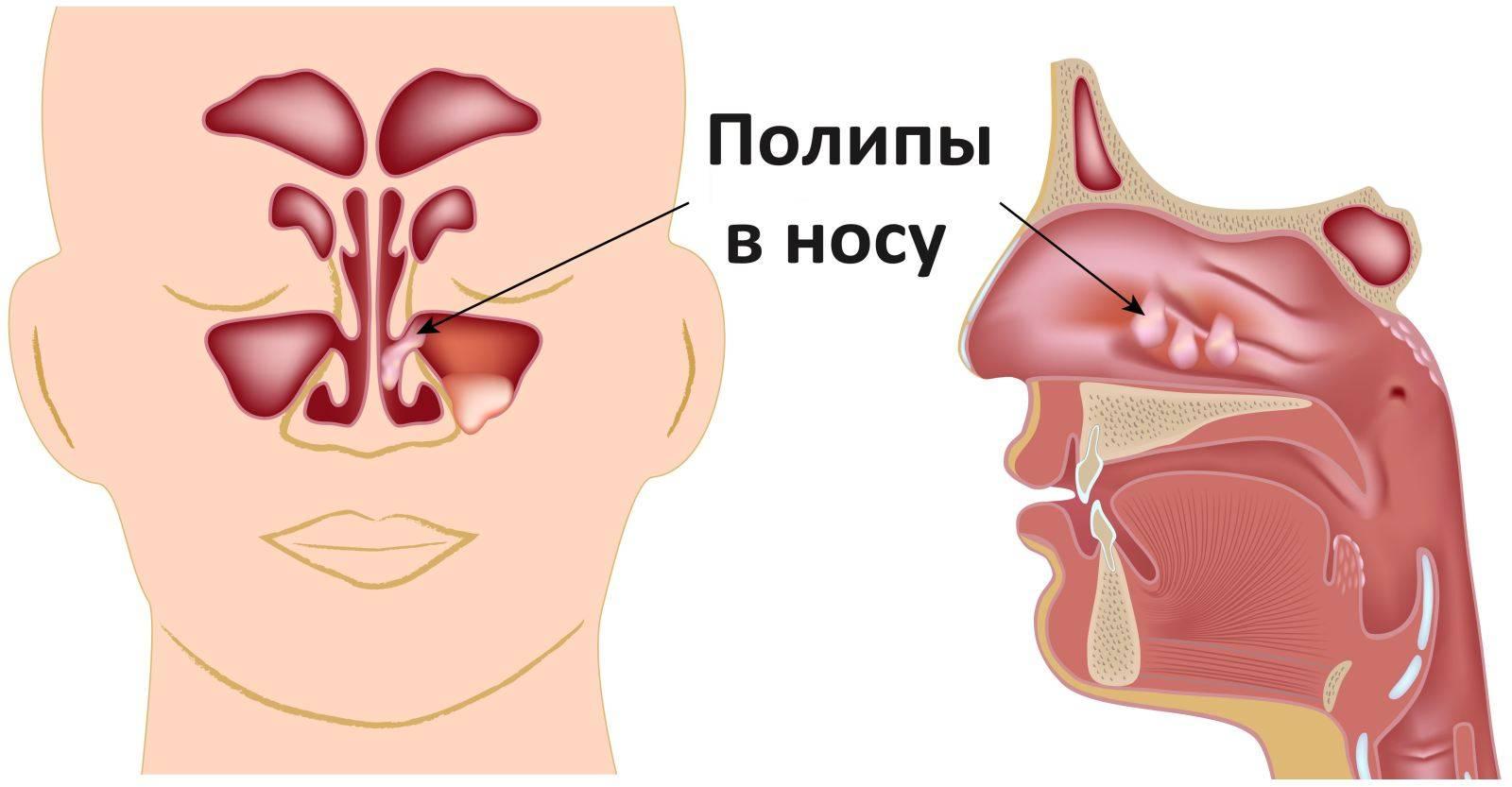как снять отек носа при насморке