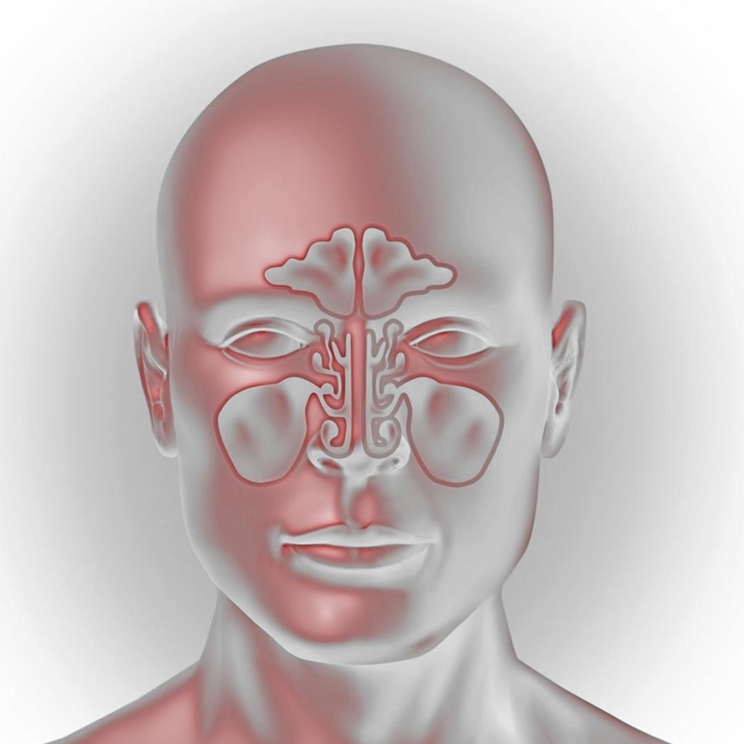 придаточных пазух носа