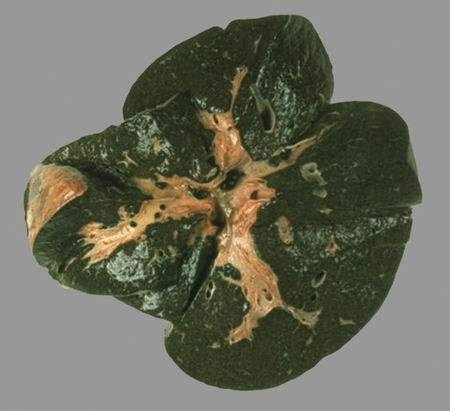 Как происходит восстановление печени при камнях в желчном?