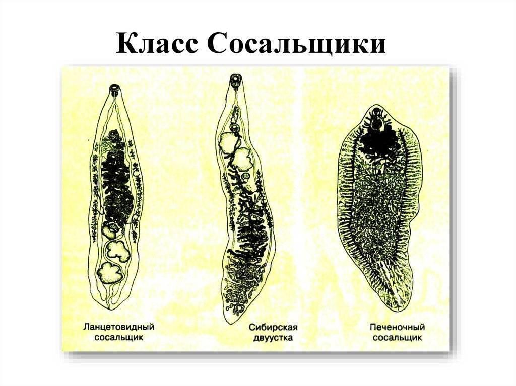 трематоды симптомы