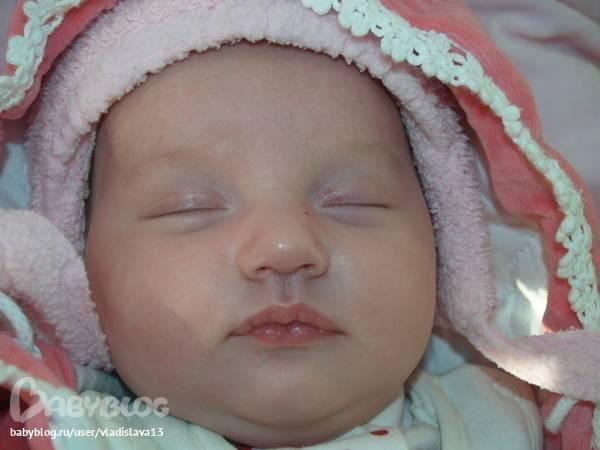 Красные пятна - на веке у новорожденного красное пятно - запись пользователя анюта (annyshka_a) в сообществе здоровье новорожденных в категории кожные заболевания - babyblog.ru