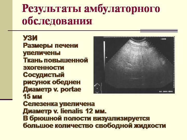 Узи печени при циррозе