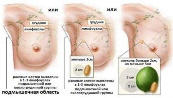 Рак молочной железы (груди) 3 степени: формы и стадии заболевания (инвазивный, инфильтративный и другие), лечение, прогноз продолжительности жизни