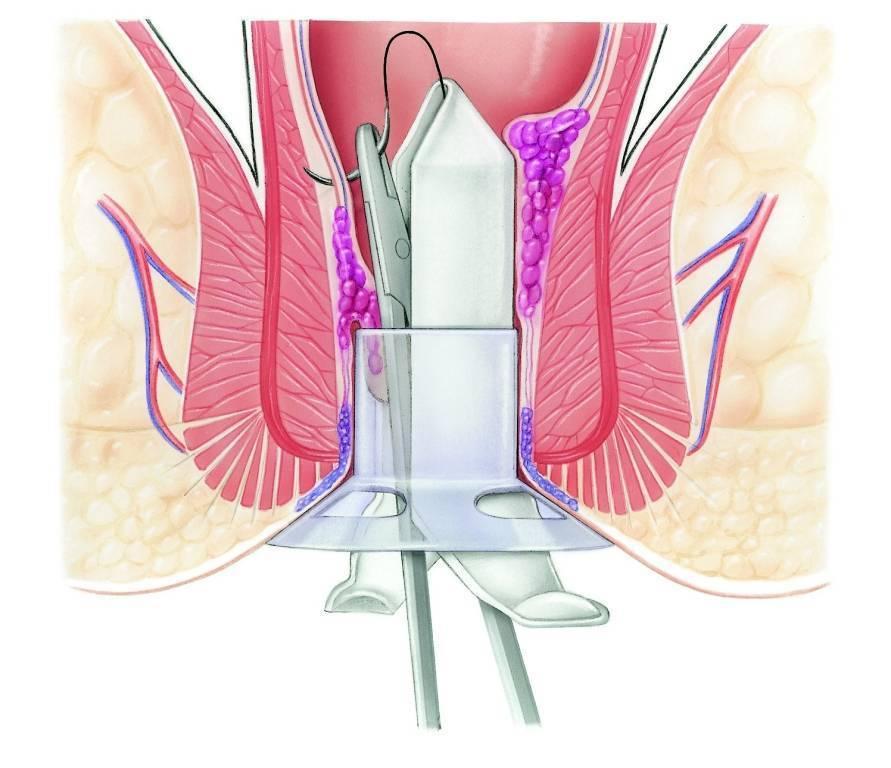 дезартеризация внутренних геморроидальных узлов