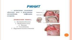 Грибок в носу: симптомы (фото), лечение препаратами