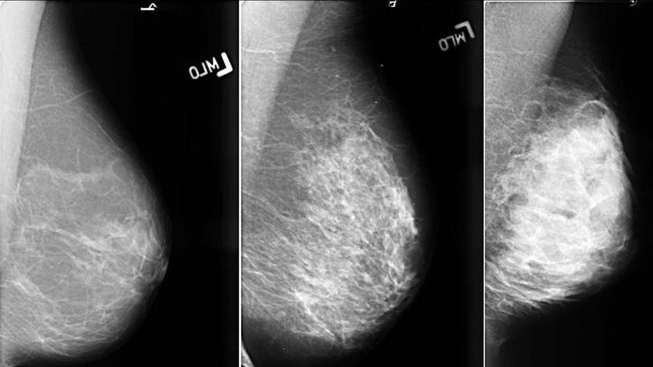 узловое образование молочной железы с нечеткими контурами