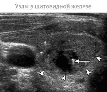 Причины, симптомы, виды и лечение узлов на щитовидке. может ли узел на щитовидной железе рассосаться и исчезнуть