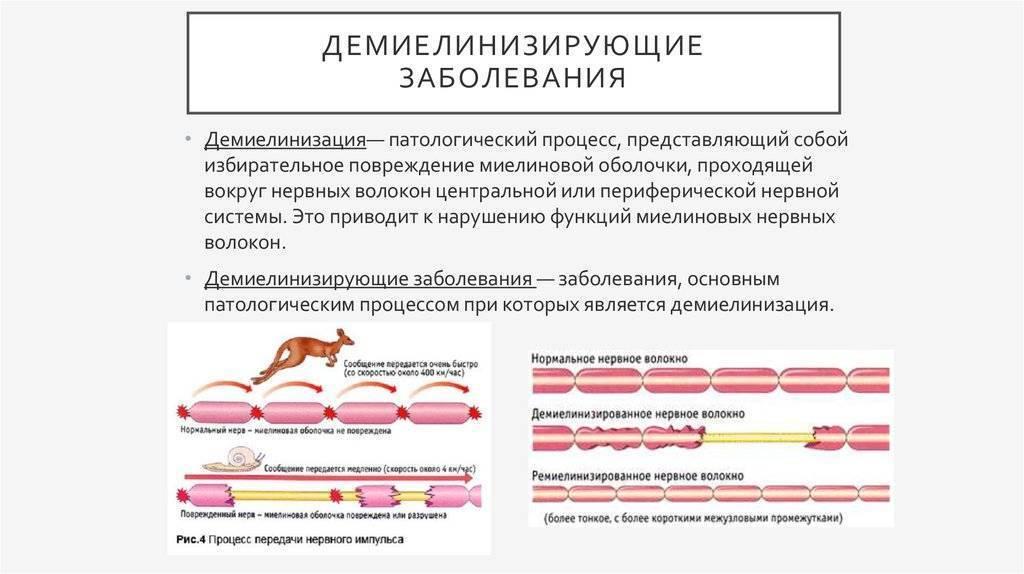 Хронические воспалительные демиелинизирующие полиневропатии - chronic inflammatory demyelinating polyneuropathy - qwe.wiki