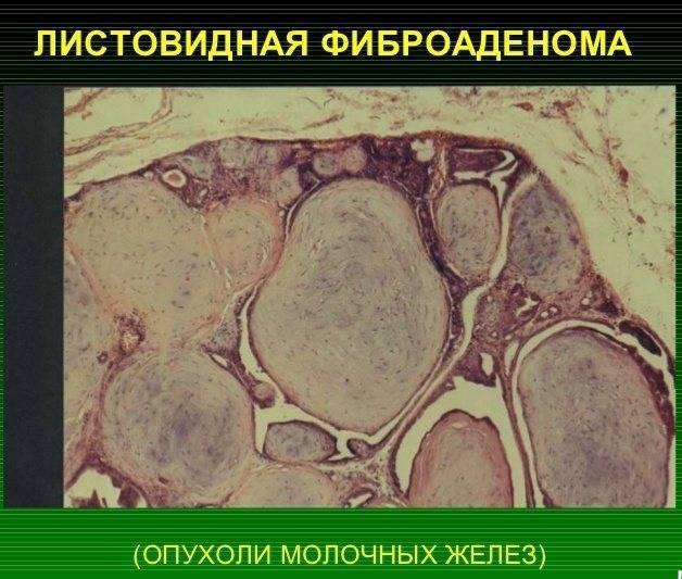 эхопризнаки фиброаденомы молочной железы