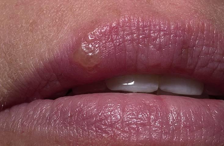 Герпес на губах - причины, симптомы и лечение герпеса