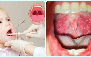 Герпесная ангина: симптомы и лечение у детей.