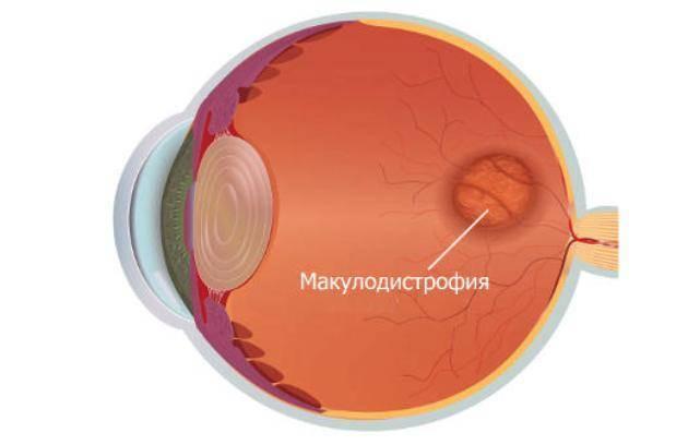 сухая макулодистрофия сетчатки глаза лечение