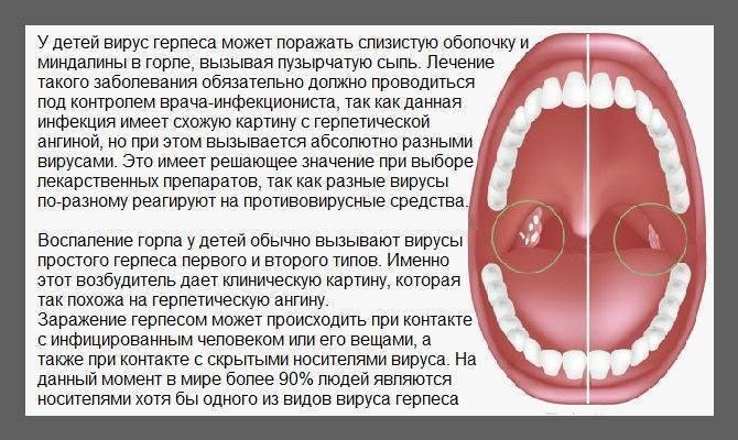 инкубационный период при ангине