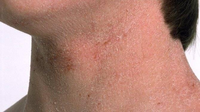 виды дерматита у взрослых