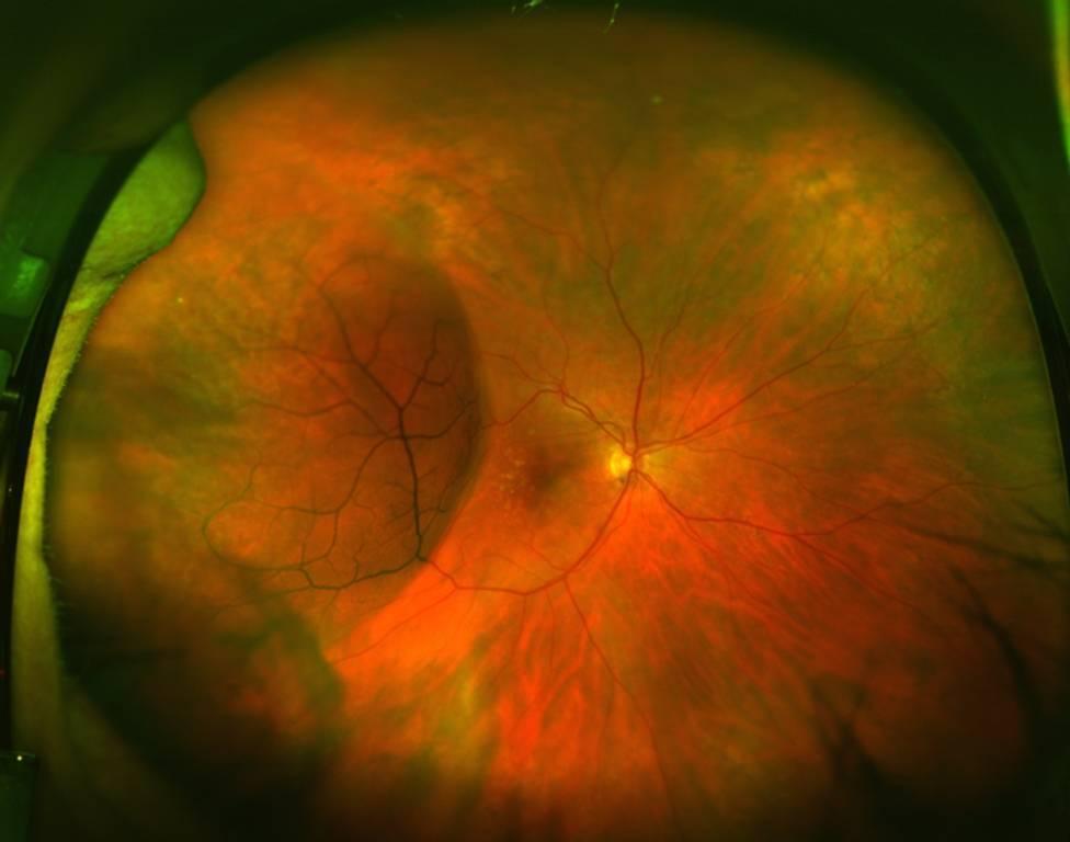 Дистрофия сетчатки глаза – что это такое, чем грозит, и как сохранить зрение?
