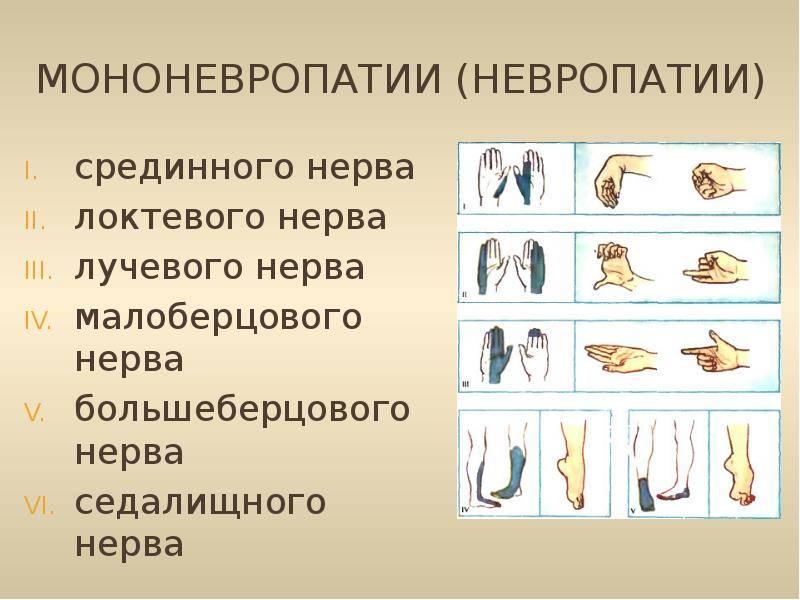 невропатия лучевого нерва руки лечение