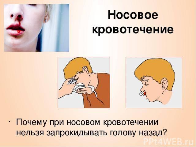 Почему идет кровь из носа каждый день: причины, способы лечения и профилактика
