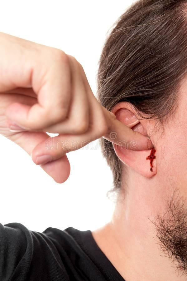 кровоточит ухо
