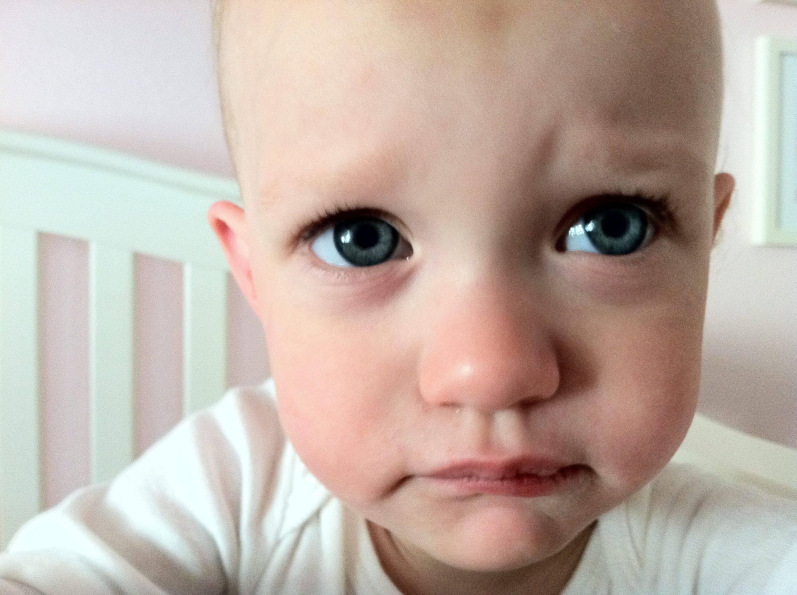синяк под глазом от удара у ребенка