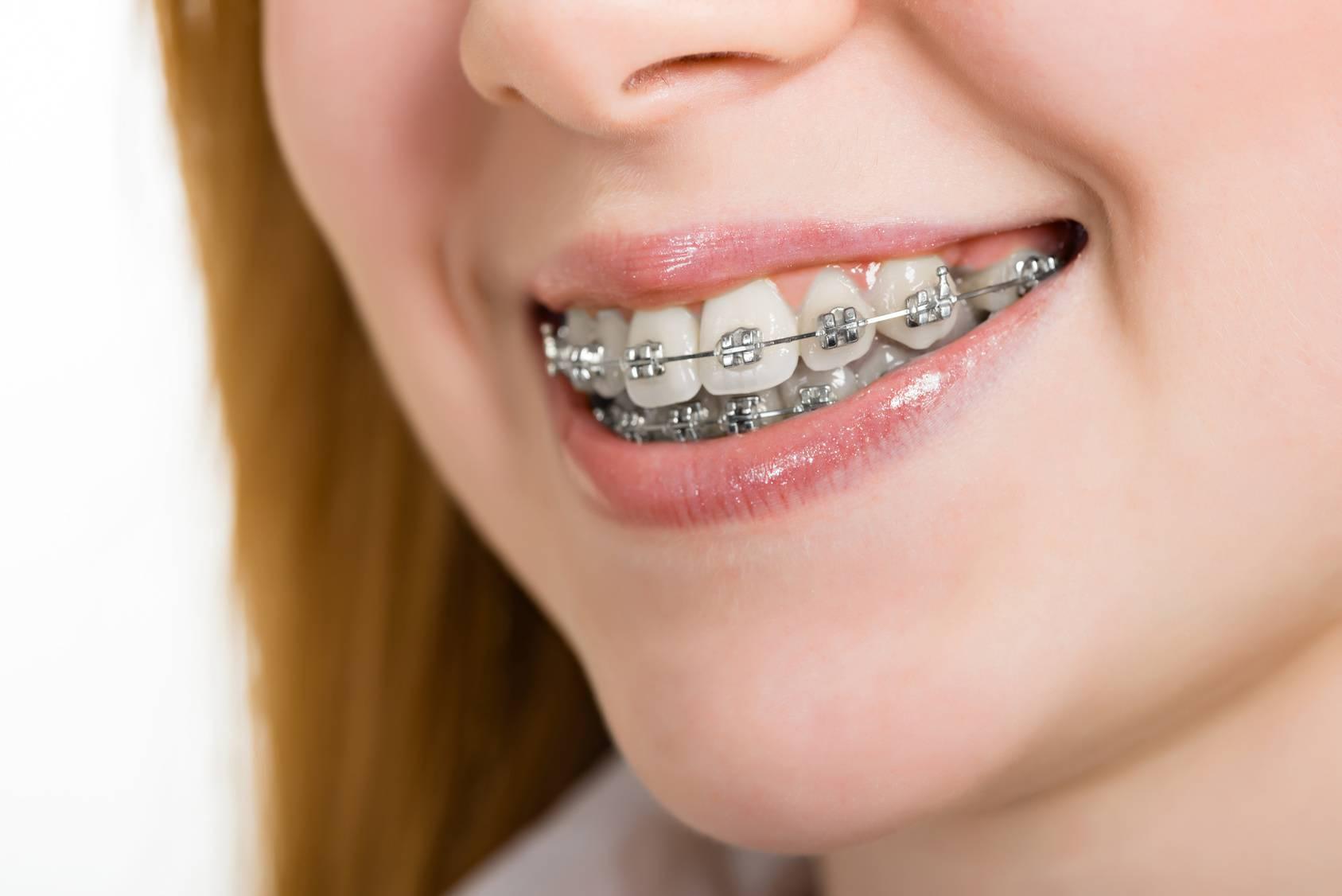 Брекеты на верхнюю челюсть — установка системы на зубы