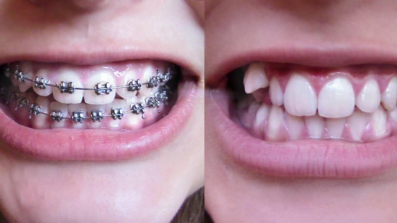 сколько дней болят зубы после установки брекетов