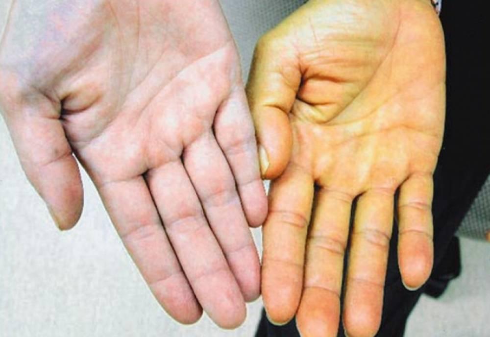 Как передаётся желтуха: ее признаки, симптомы, виды, лечение, диета и профилактика