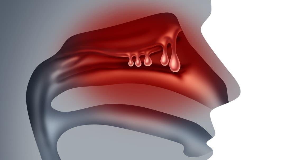 Риносинусит — что это такое, его симптомы и лечение