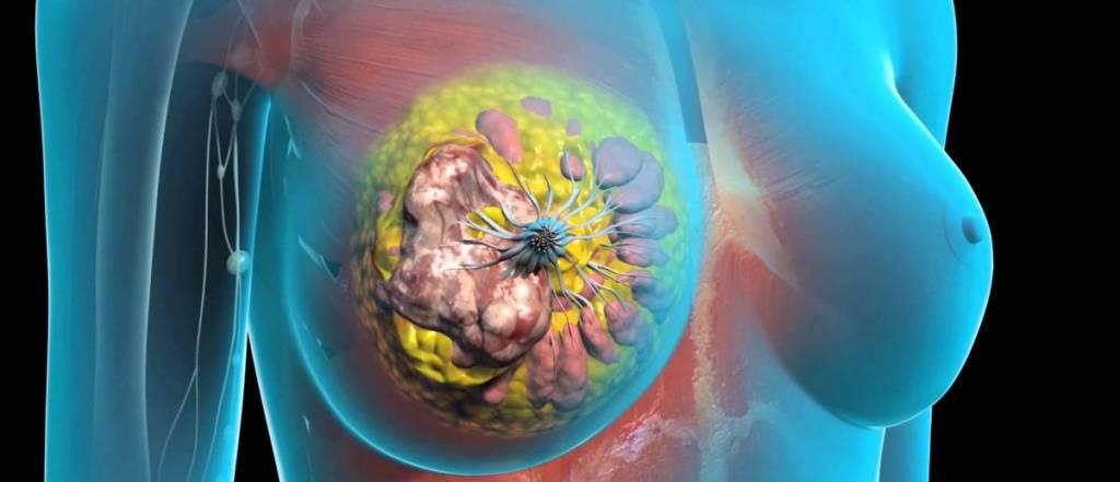 аденома грудной железы лечение