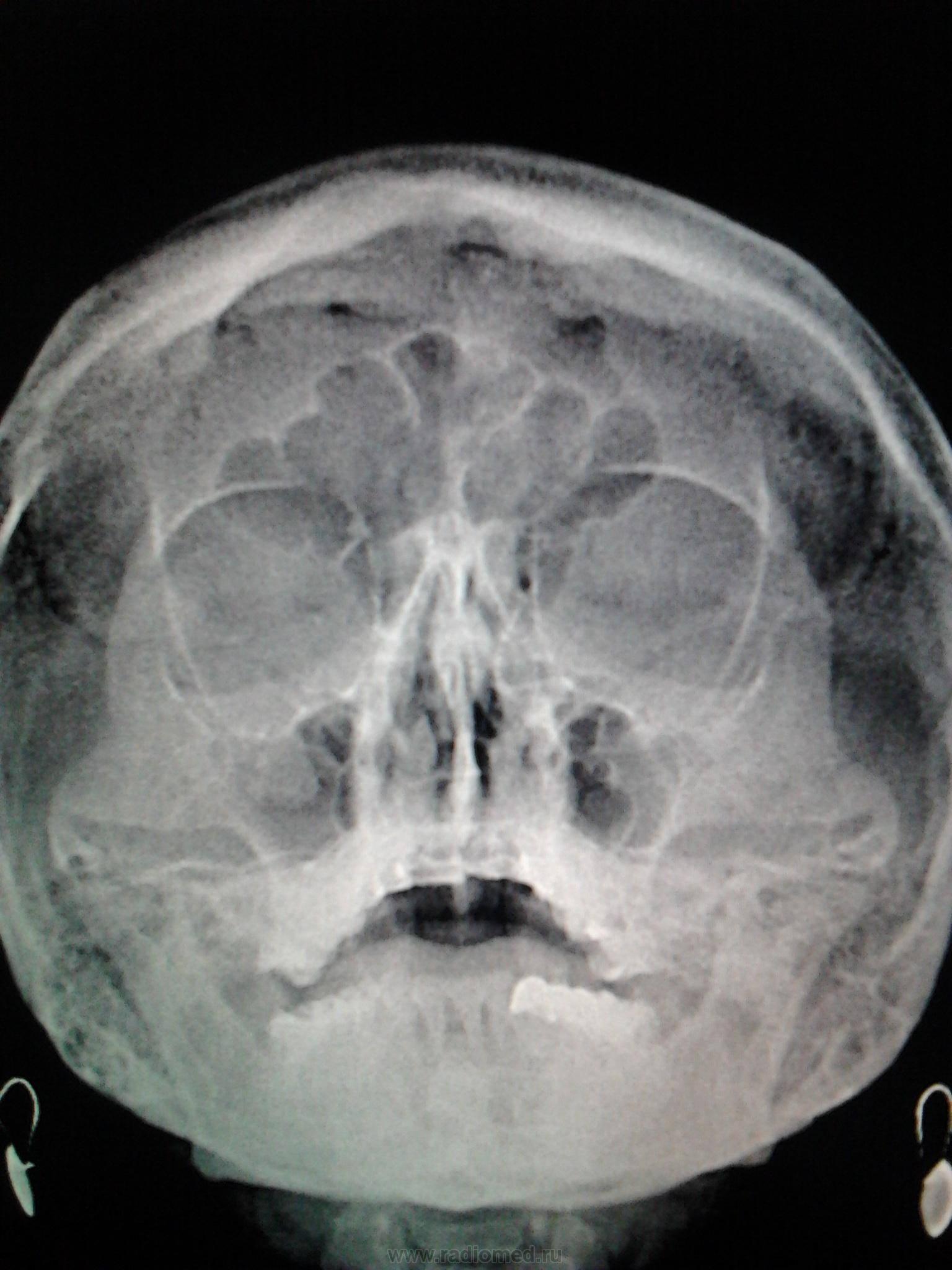 Симптомы и лечение кисты лобной пазухи, удаление