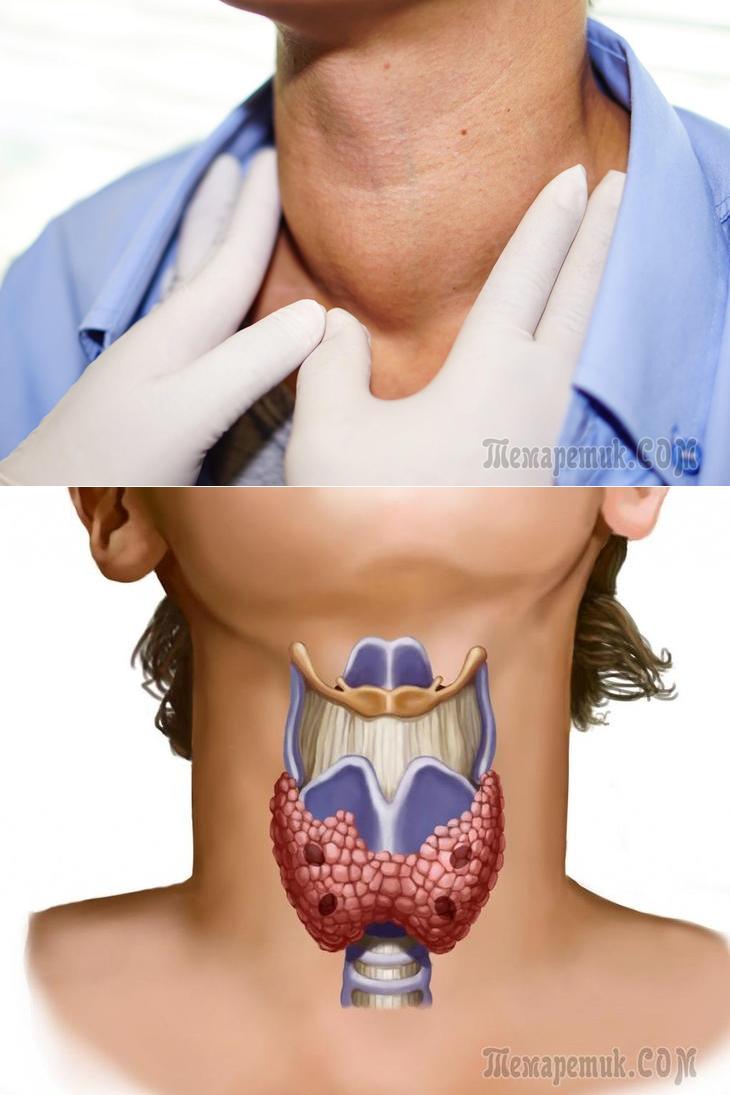 Узлы в щитовидке: надо ли их бояться