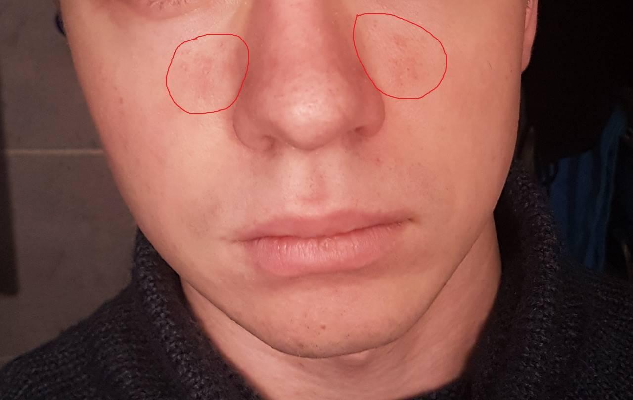 Болячки в носу причины и лечение