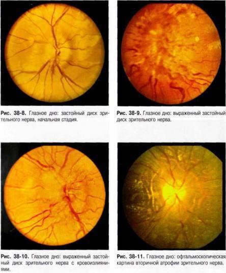 Отёк диска зрительного нерва — википедия