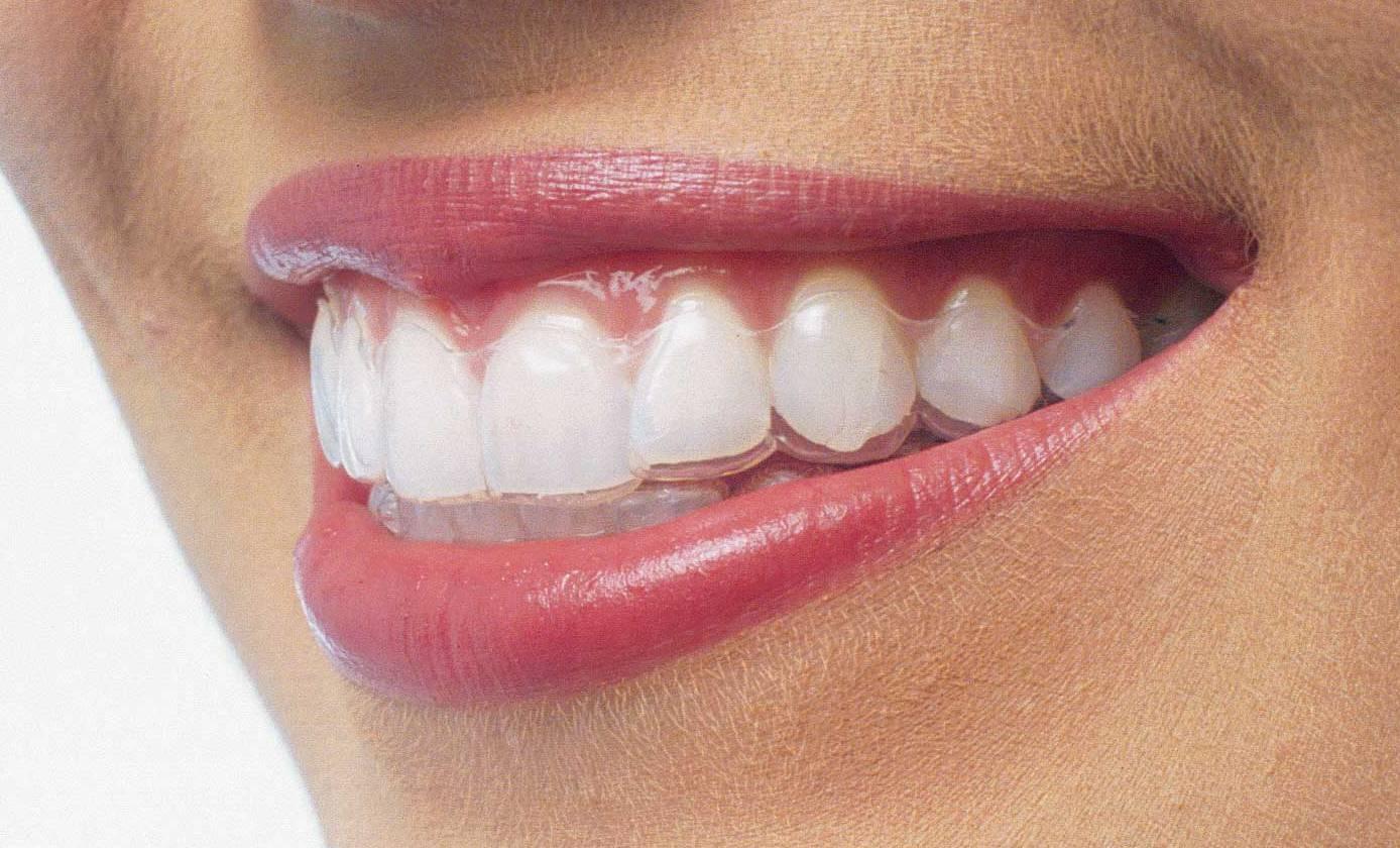 Как элайнеры выпрямляют зубы?