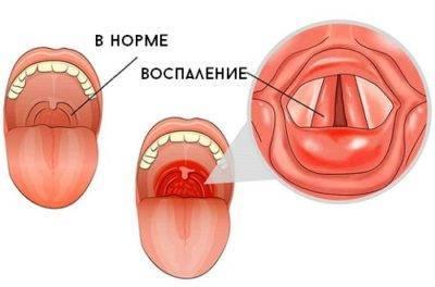 Субатрофический фарингит — симптомы