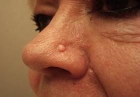 Как избавиться от бородавки, которая выросла прямо на носу